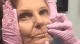 满脸皱纹的老奶奶打完针后竟能重返青春?