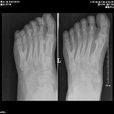 多指症の画像 p1_1