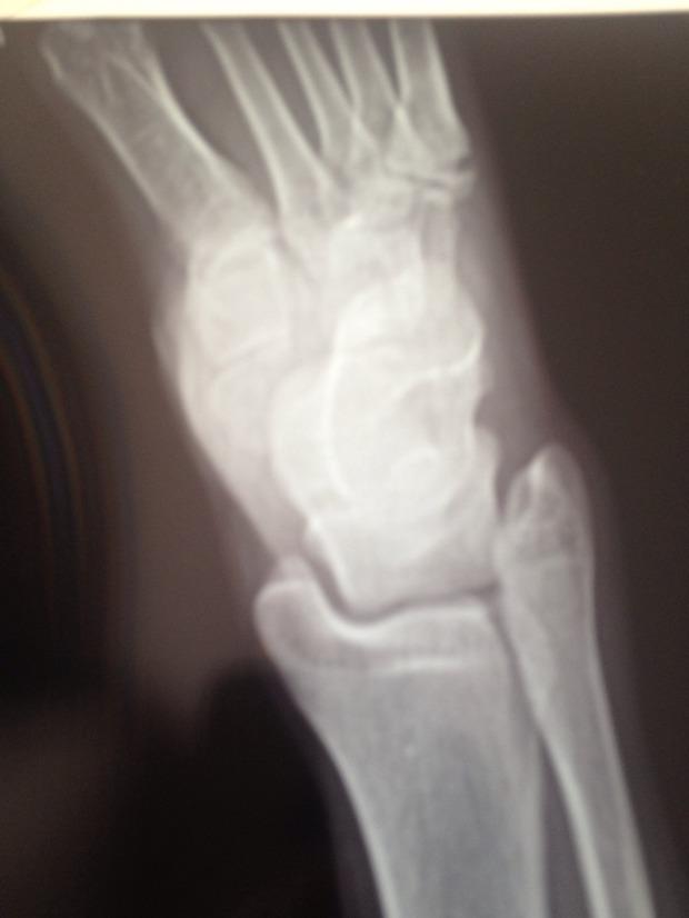 右脚第五跖骨基底部骨折断裂没打石膏 大夫只是给包扎了一下没有外伤