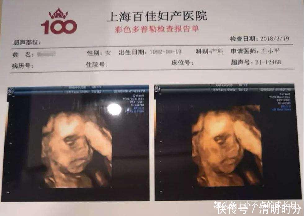 孕期产检做四维彩超时,为什么胎儿总是会捂着脸