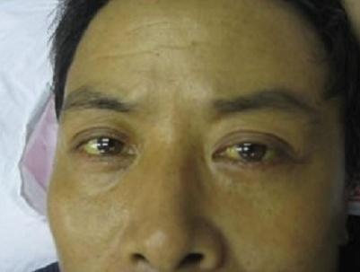 从眼睛判断你身体健康否:照镜子自测 - 一统江山 - 一统江山的博客