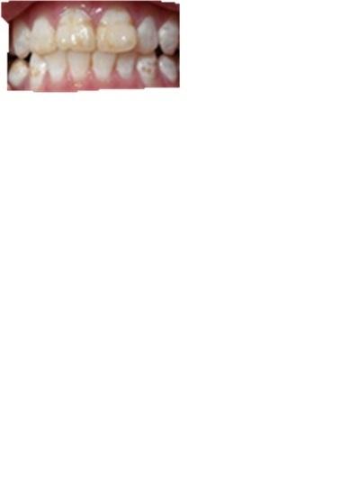 可爱牙齿边框简笔画