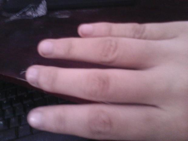 类风湿手指 类风湿手指肿胀图片 类风湿手指肿胀图片