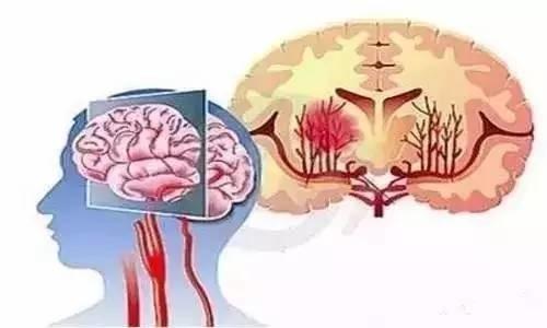 65岁以后十个动作会令心脑血管崩溃 千万别做! - 年轻的心 - 年轻的心博客