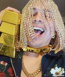 墨西哥说唱歌手将金链植入头皮 建议大家不要模仿