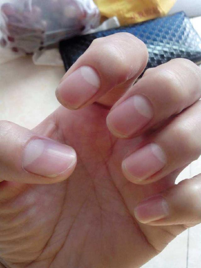 手指甲上的半月牙越多 病就越多是真的吗?