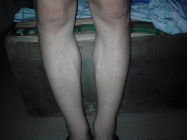 膝盖和小腿向外拐 怎么矫正?