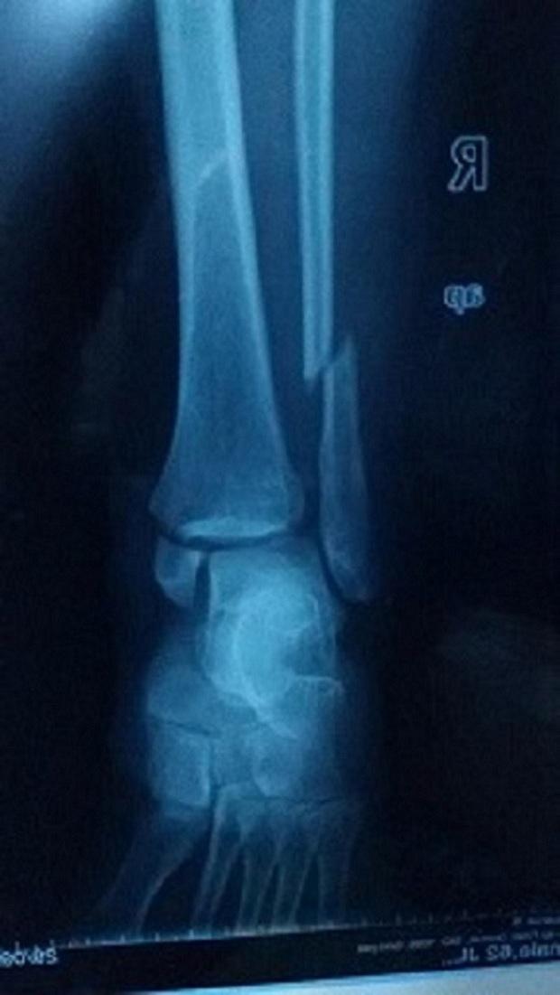 去医院照x光片医生说骨头没有对正