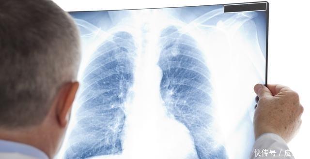不吸烟不喝酒,18岁男子肺癌中晚期!医生直言:这些因素同样致癌