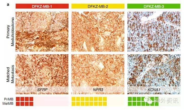 应用免疫组化检测,结果证实了上述结论(图3)