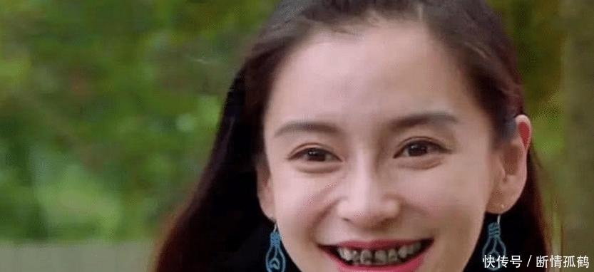 明星最希望删掉的照片,杨颖的牙上榜,最后这位太魔性!