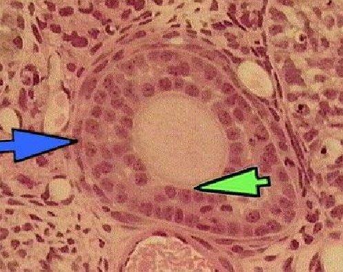 初级卵泡的结构图