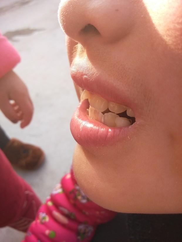 小孩换牙以后牙齿长歪了怎么办?小孩9岁了